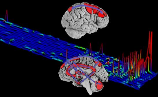 glenys20090627_cerebro
